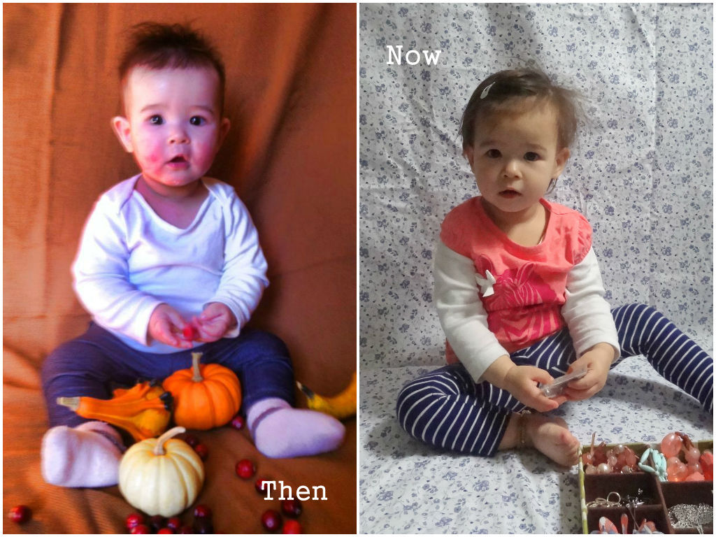 baby eczema then and now